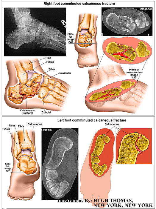 Right foot comminuted calcaneous fracture